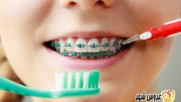مشکلاتی که با ارتودنسی دندان حل میشود کدامند؟