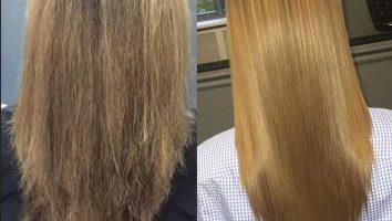 ویتامینه مو چیست و چرا باید آن را جدی بگیریم؟