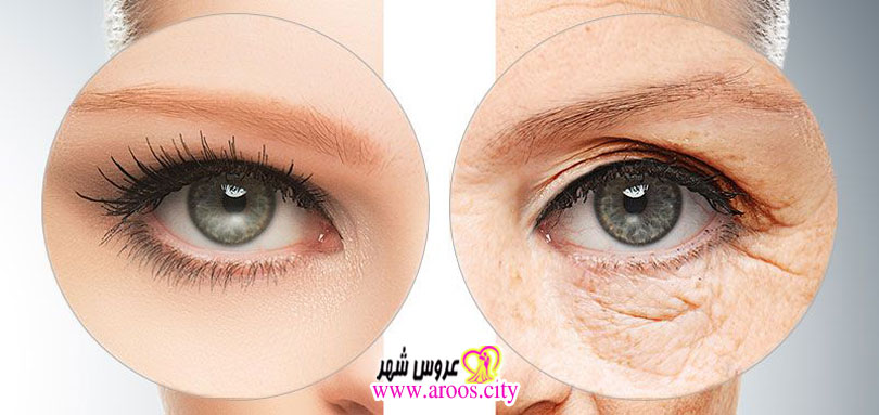 انواع جوانسازی پوست